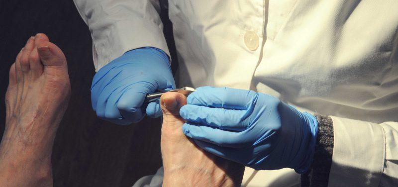 Tratamento das Onicomicoses (Micoses nas Unhas)